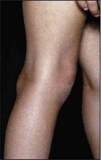 enyhíti a súlyos ízületi fájdalmakat