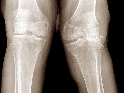 orvosi hírek az artrózis kezelésében