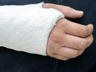 Így csillapítható a fájdalom csonttörések esetén