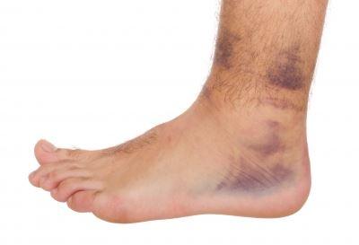 a bal láb boka sérülése