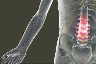 fájdalom merevség a gerinc ízületeiben