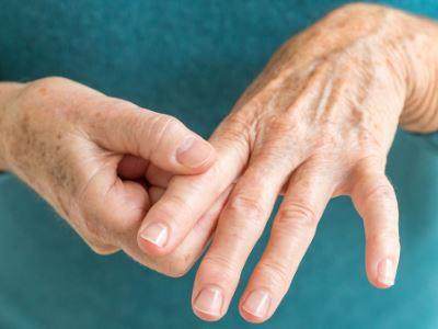 az ujjak ízületi gyulladásának kezelése)