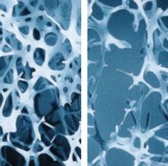 csípőízület csontritkulás gyógyszerei