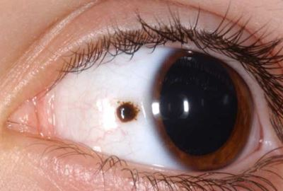 melanoma látás