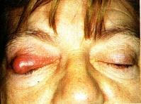 vörös foltok az alsó szemhéjon pikkelyesek pikkelysömör kezelése, mint enyhti a viszketst
