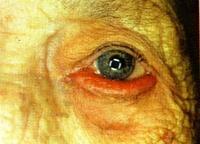 vörös és pikkelyes folt a felső szemhéjon vörös foltok az arcon és a testen viszketéssel