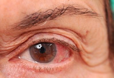 Glaukóma látási problémák