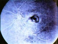 szemészeti retina degeneráció a látásélesség helyreállítása