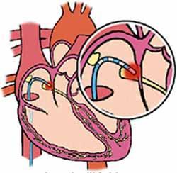 egészséges ételek magas vérnyomás elleni táplálék vese magas vérnyomás kezelésére szolgáló gyógyszer