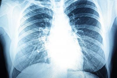 tüdő hipertónia)