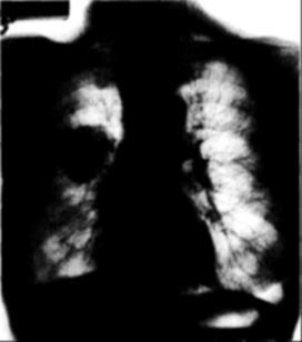 életen át tartó tüdőrák