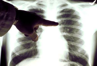 stádiumú tüdőrák