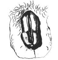 miért hajlik meg a pénisz