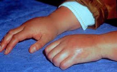 fájdalom a kéz és a köröm ízületeiben
