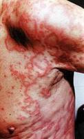 Gyógyszerallergia képek