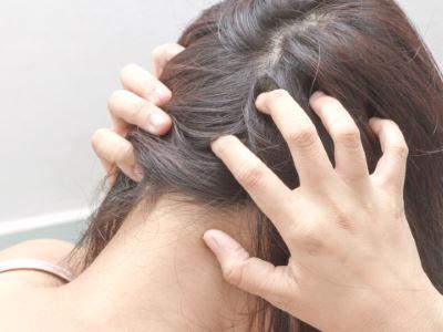 a fejbőr hajában néhol vörös foltok és pelyhesek)