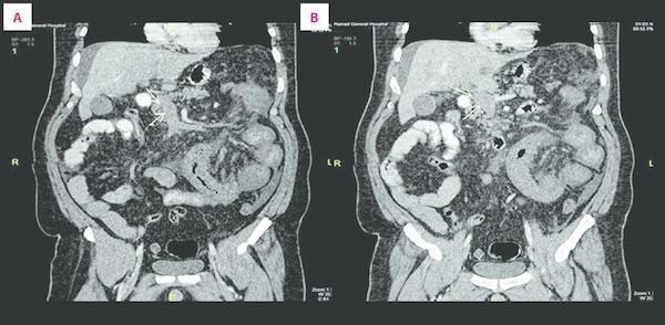 fogyás a vékonybél elzáródása után zsírégető ember honlapja