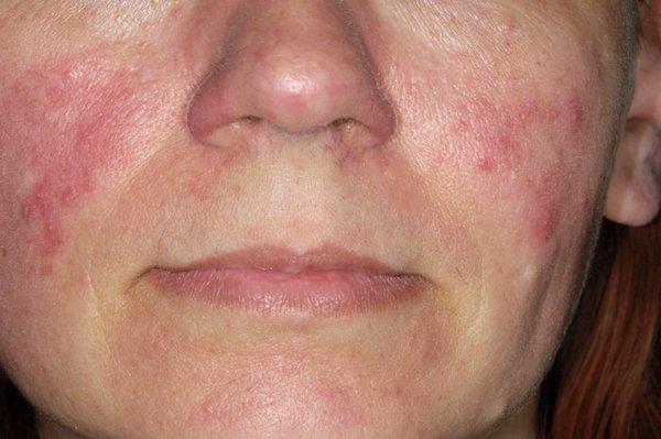 kiütés az arcon piros foltok formájában fotó